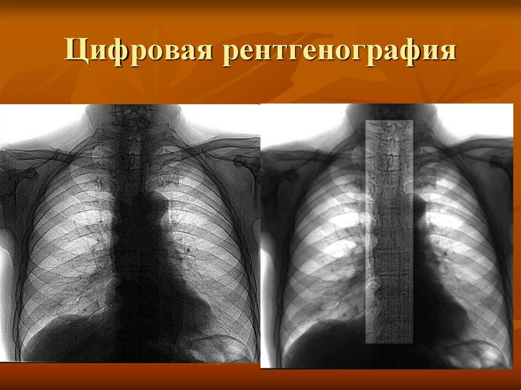Правила госпитализации. перечень необходимых  анализов и исследований