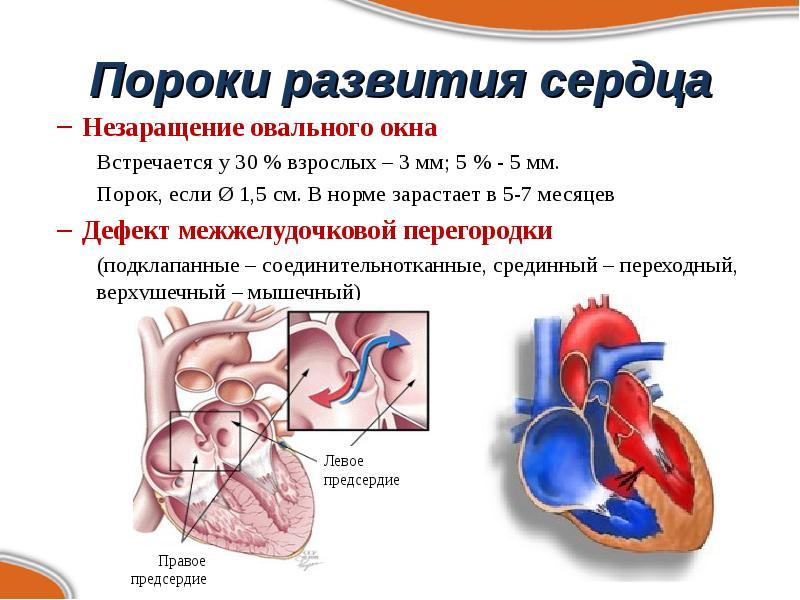 Порок сердца что это такое