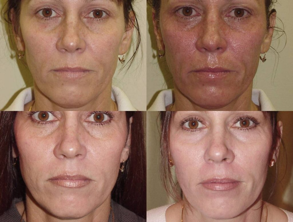 Газожидкостный пилинг лица: что это такое, отзывы косметологов, противопоказания