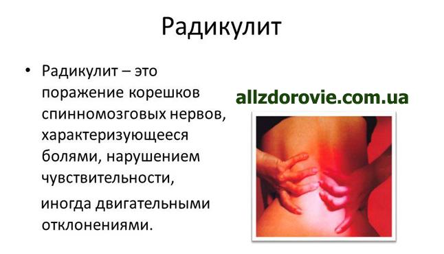 Радикулопатия s1 справа