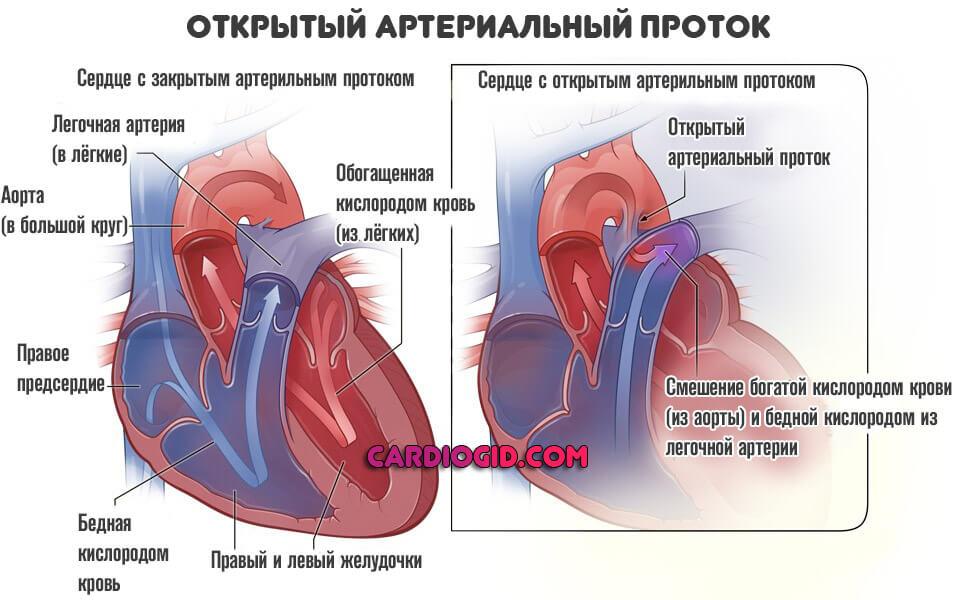 Пороки сердца: классификация, причины, виды, симптомы и лечение