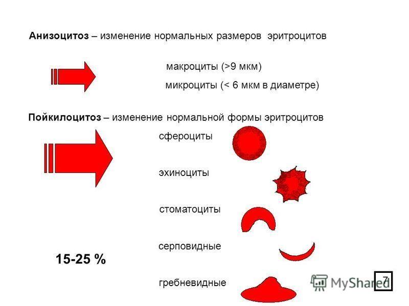 Анизоцитоз в общем анализе крови: опасно ли это