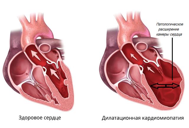 Дилатационная кардиомиопатия – причины, диагностика и лечение