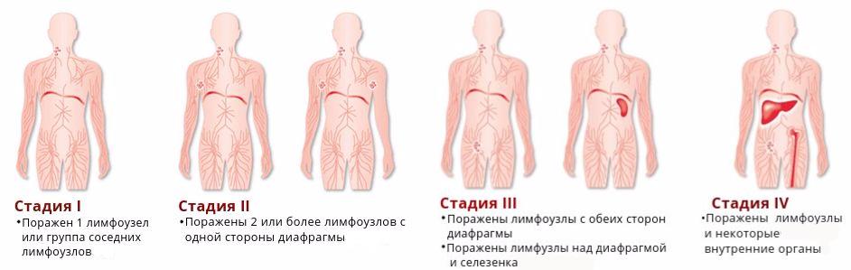 Неходжкинские лимфомы, что это такое?