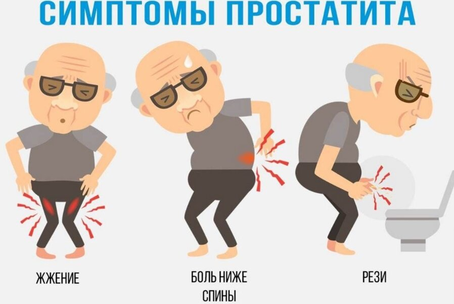 Что такое простата у мужчин и какие у нее функции?