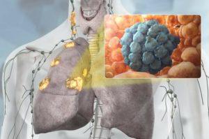 Метастазы при раке и их главная опасность. причины, диагностика и возможность лечения