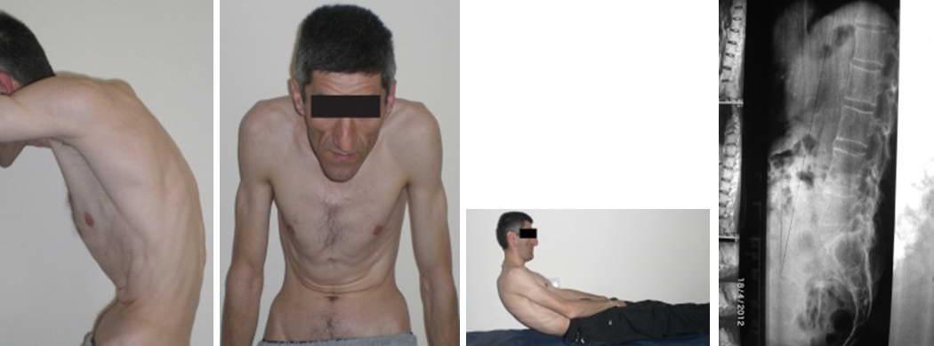 6 болезней, которые могут имитировать анкилозирующий спондилит (болезнь бехтерева)