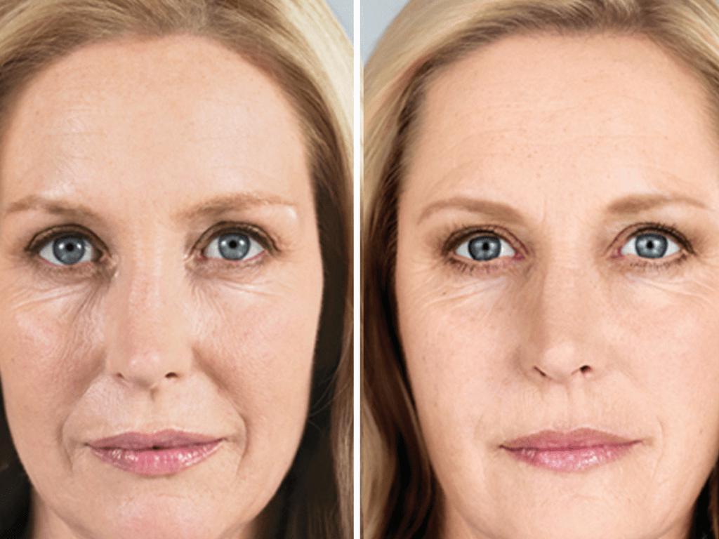 Омолаживающие эффекты и безопасность dmae в косметологии