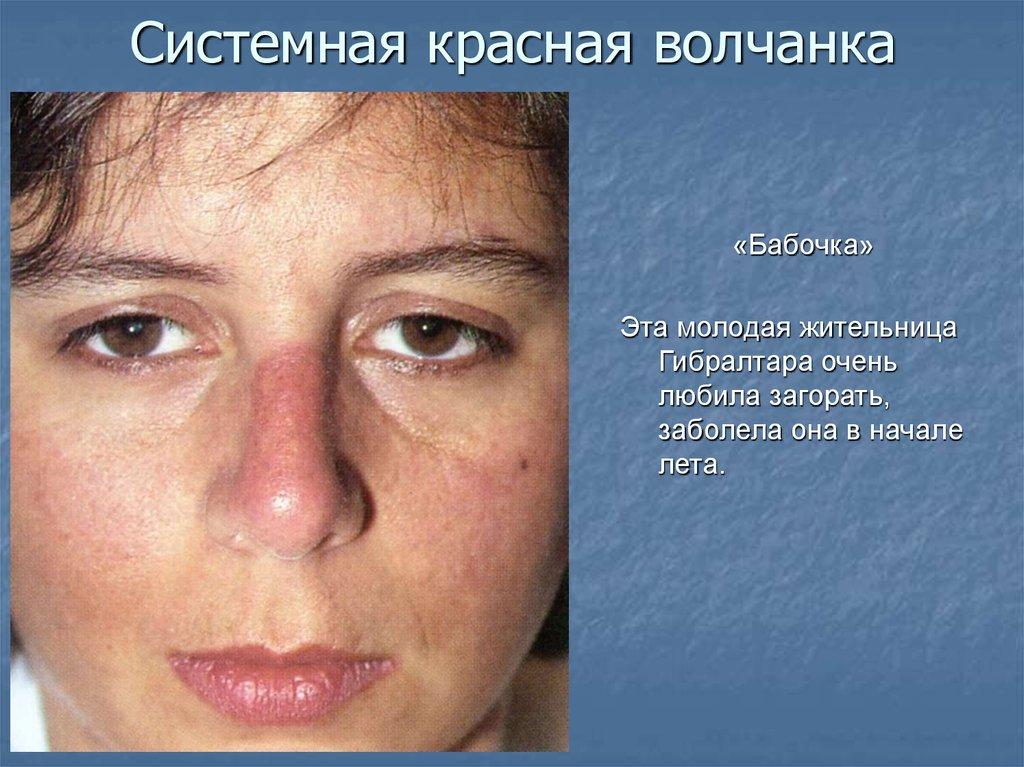 3 признака красной волчанки и как она проявляется: симптомы, лечение, фото