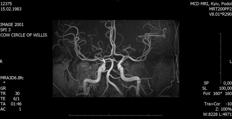 Гипоплазия шейного отдела позвоночника что это такое