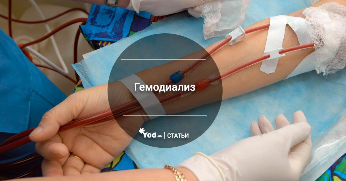 Гемодиализ почек — стоимость процедуры и противопоказания