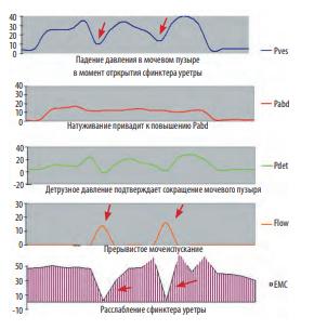 ✓ урофлоуметрия (уфм) - цены на обследование в москве