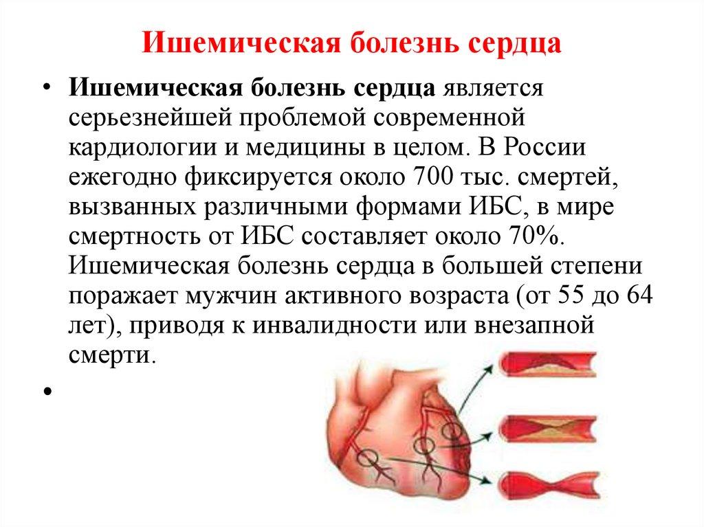 Ишемическая болезнь сердца: что это такое, симптомы, лечение ишемии миокарда