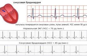 Брадикардия сердца лечение народными средствами