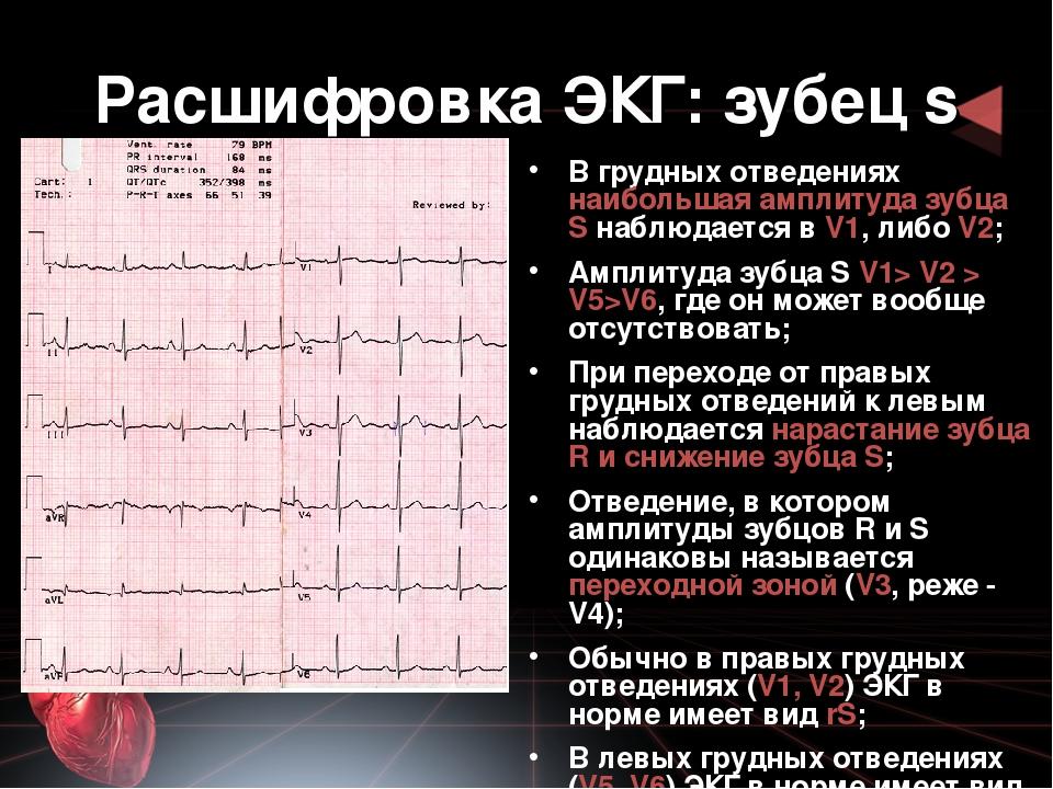 Кому не надо делать экг. о кардиограмме – подробно. что такое кардиограмма что такое кардиограмма сердца