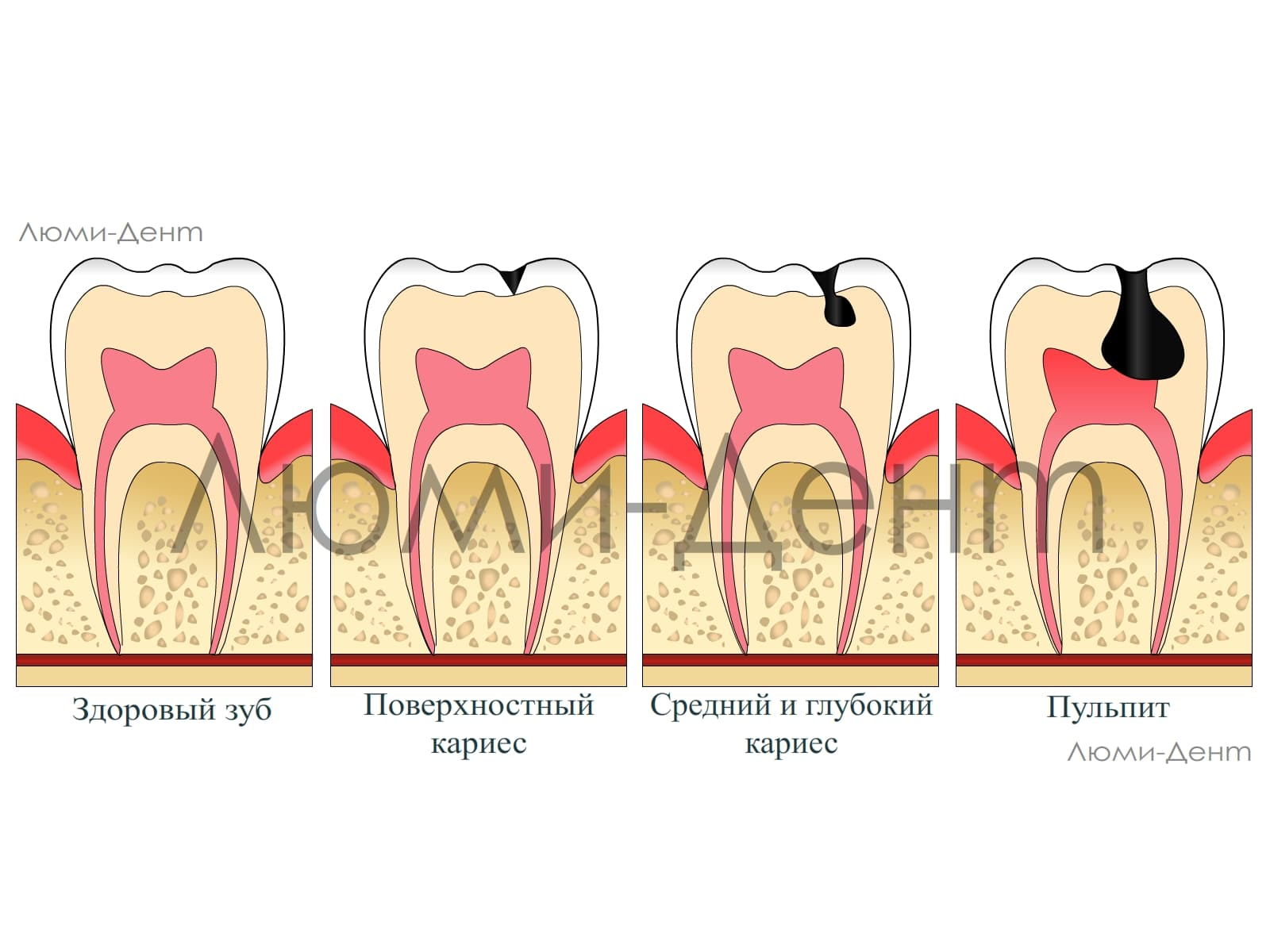 Пульпа зуба: понятие, заболевания и их лечение