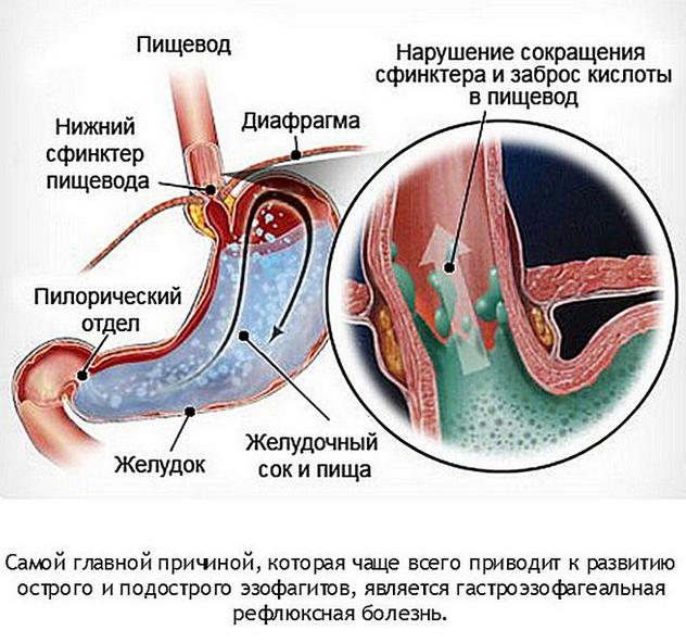 Дуодено-гастральный рефлюкс: что это такое, лечение и симптомы