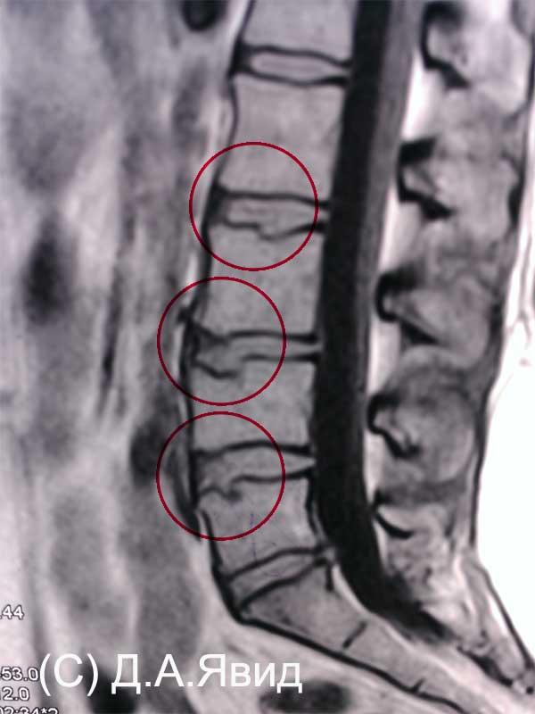 Если у вас подозрение на грыжу шморля в грудном отделе позвоночника – читайте статью