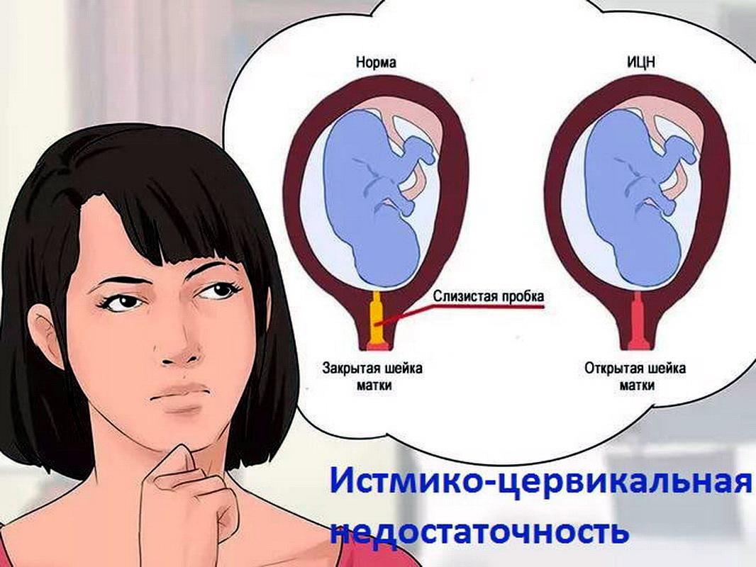 Истмико-цервикальная недостаточность при беременности: что это такое, диагностика ицн, лечение и родоразрешение