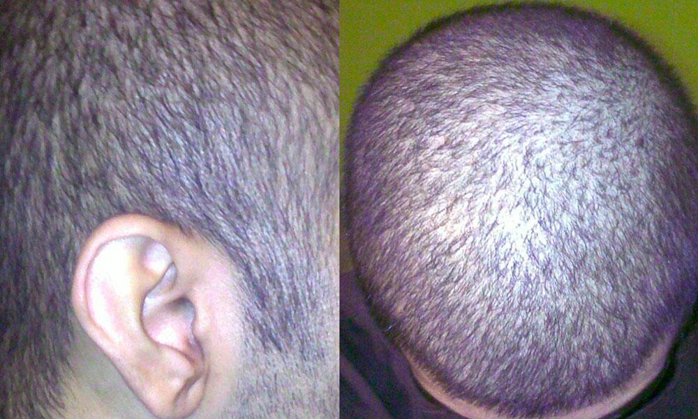 Алопеция: причины и лечение выпадения волос