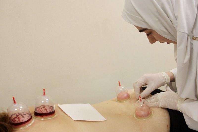 Хиджама - что это такое? кровопускание (хиджама): отзывы, фото, противопоказания