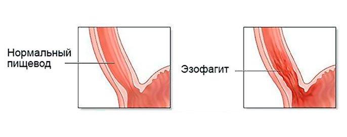 Особенности лечение рефлюкс эзофагита: симптомы и профилактика