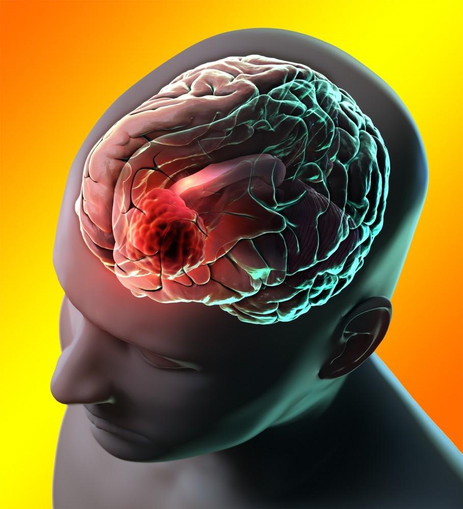 Менингиома головного мозга: что это такое, прогноз жизни, лечение без операции