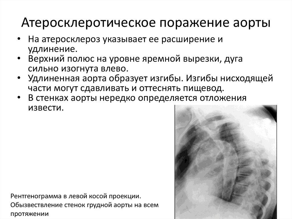 Атеросклероз аорты: что это такое, симптомы и лечение