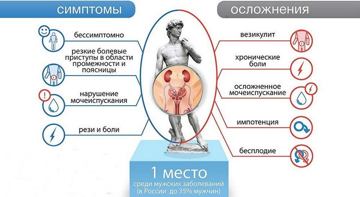 Причины простатита у мужчин - от чего появляется воспаление предстательной железы