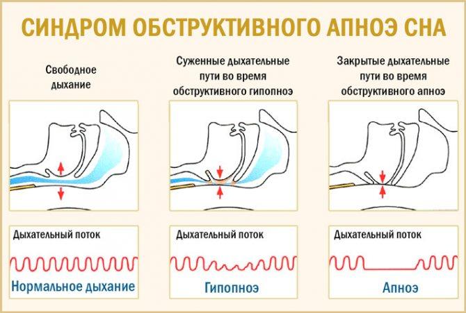 Апноэ: что это такое, причины, лечение в домашних условиях