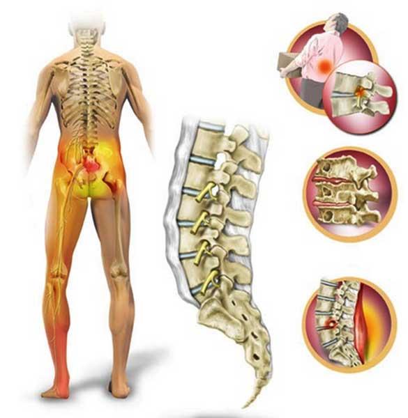 Люмбоишиалгия (люмбаго с ишиасом): что это такое и как лечить, симптомы и причины, гимнастика, народные средства