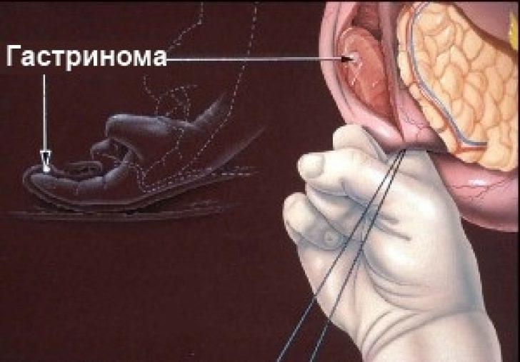 Синдром золлингера-эллисона: симптомы, причины, лечение