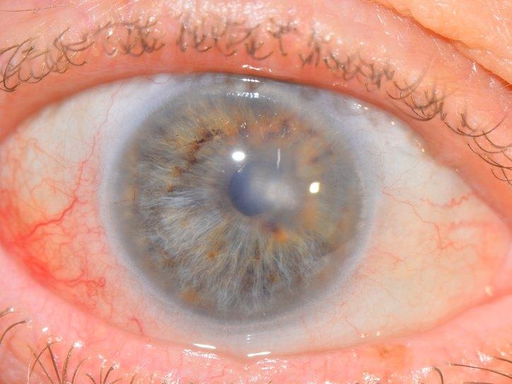 Роговица глаза: строение роговой оболочки и функции