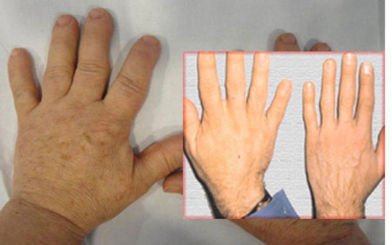 Акромегалия: причины и симптомы, лечение, что такое гипофизарный гигантизм, препараты при болезни