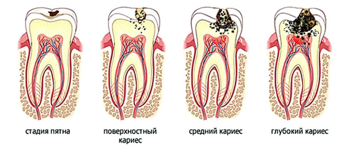 Пульпит зуба, симптомы и признаки пульпита, лечение и диагностика пульпита зуба, пульпит фото.