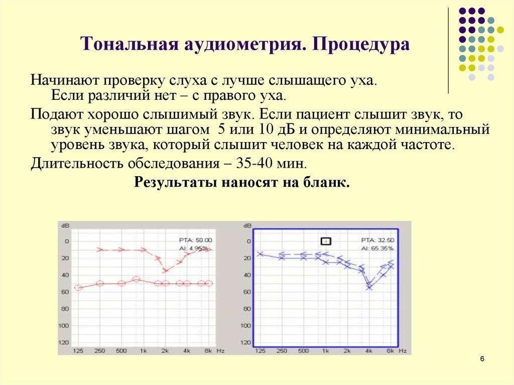Записаться на аудиометрию - от 1100 руб. цена в «клинике abc» в москве