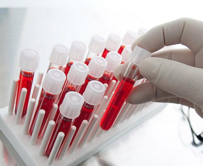 Значение коэффициента больших тромбоцитов