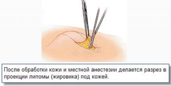 Липома, что это такое? фото, симптомы и лечение