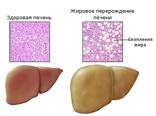 Стеатоз печени (гепатоз): симптомы, лечение и диета при жировом гепатозе