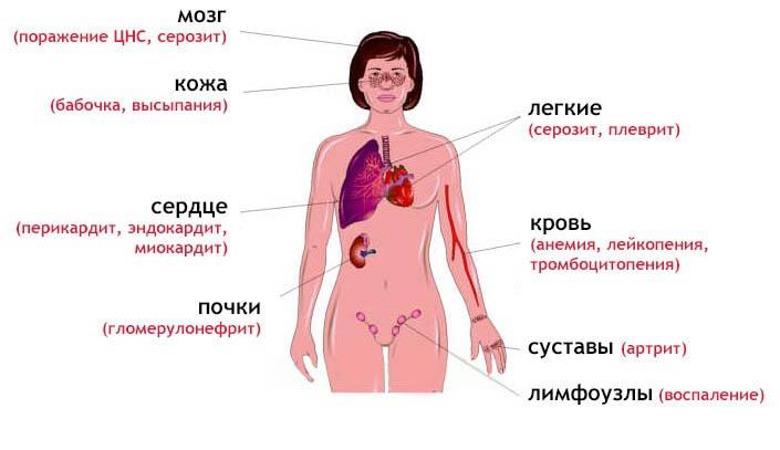 Волчанка - что это за болезнь, симптомы, причины и лечение болезни