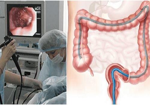 Ирригоскопия кишечника: отзывы, что это такое, как проводится