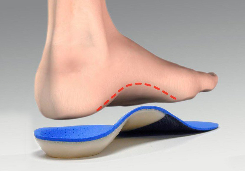 Что такое супинатор в обуви? виды ортопедических стелек.
