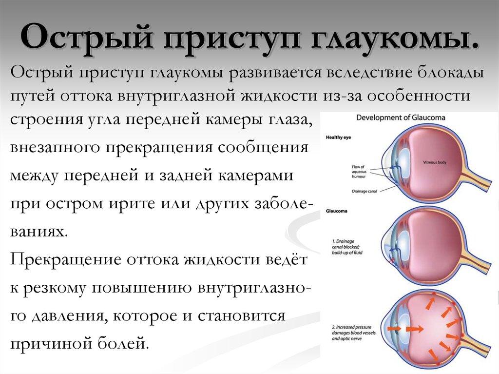 Глаукома - причины, симптомы, лечение и профилактика заболевания глаз