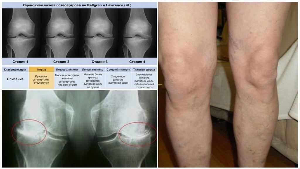 Вторая стадия гонартроза коленного сустава