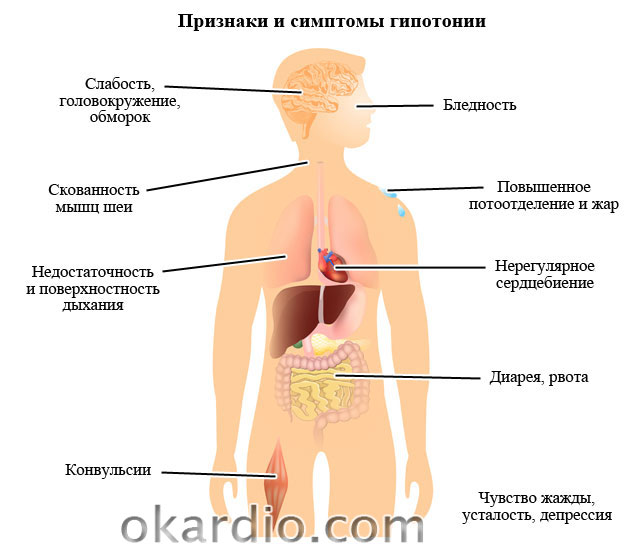Гипотония – симптомы, причины и лечение заболевания