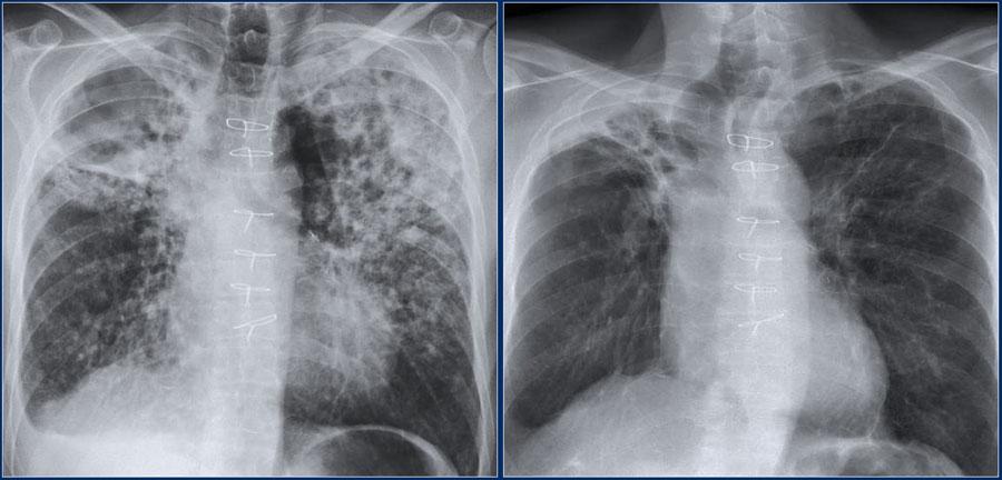 Диффузный пневмосклероз легких: что это такое и сколько с этим живут, лечение народными средствами и признаки