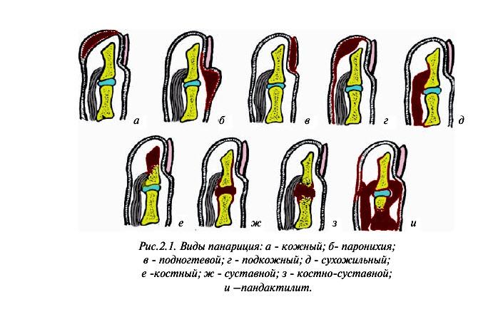 Как лечить панариций на пальце: самые эффективные методы лечения