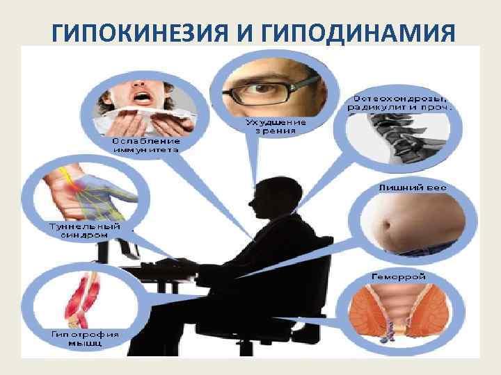 Гипокинезия и ее симптомы
