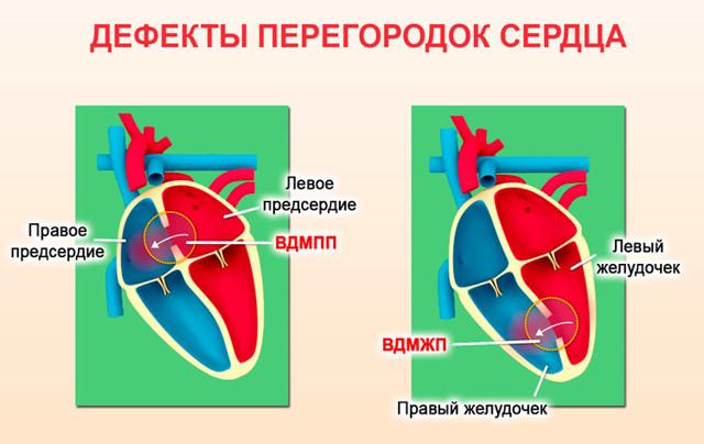 Порок сердца - что это такое? признаки, диагностика, лечение, операция :: syl.ru