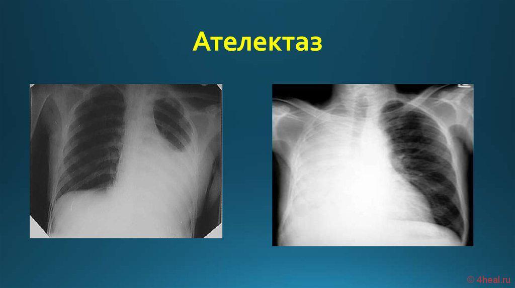 Ателектаз легкого: дисковидный, правой, левой, верхней, нижней, средней доли : причины, симптомы, диагностика, лечение | компетентно о здоровье на ilive